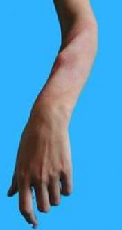Fracture interne avant bras, tibia ou clavicule